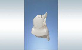 Standardization Helps Medical Device Manufacturer Produce Custom Orthotics